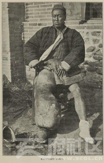 64 马尔康东 鹧鸪山 象皮病  1896.JPG